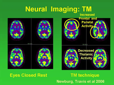 Neural Imaging of the brain